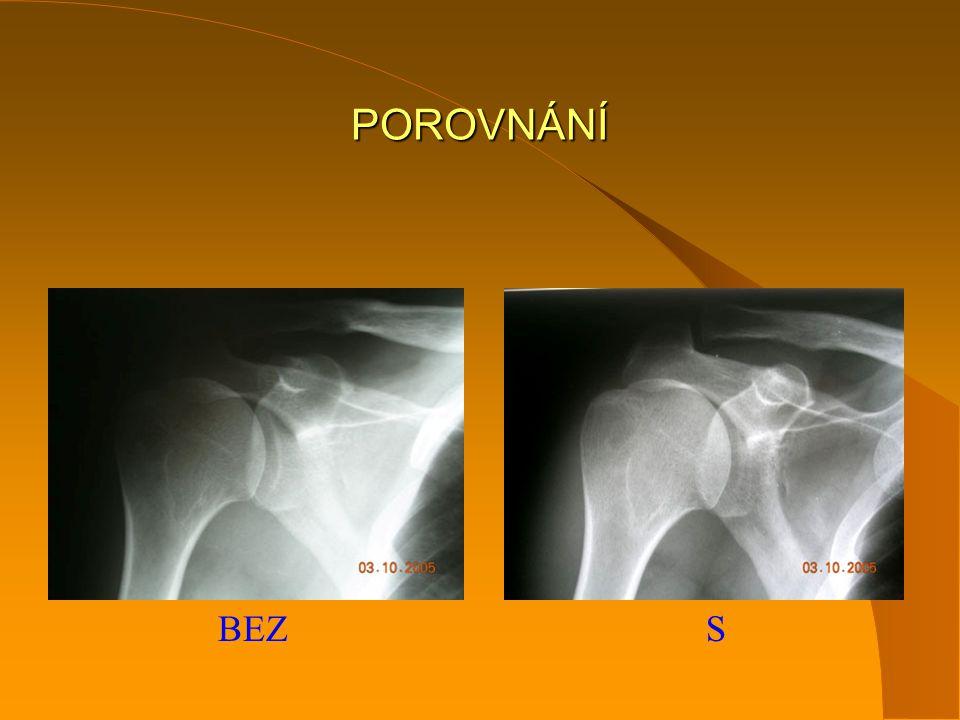 INDIKACE chirurg ortoped revmatolog