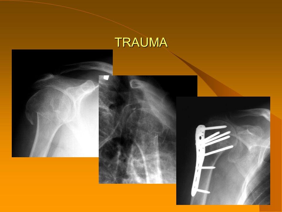 BOLESTIVÉ RAMENO bolest ramene bez úrazové příčiny jedná se o postižení jedné nebo více měkkých struktur ramenního kloubu,svalů,šlach,burz,vazů nebo glenoidálního labra