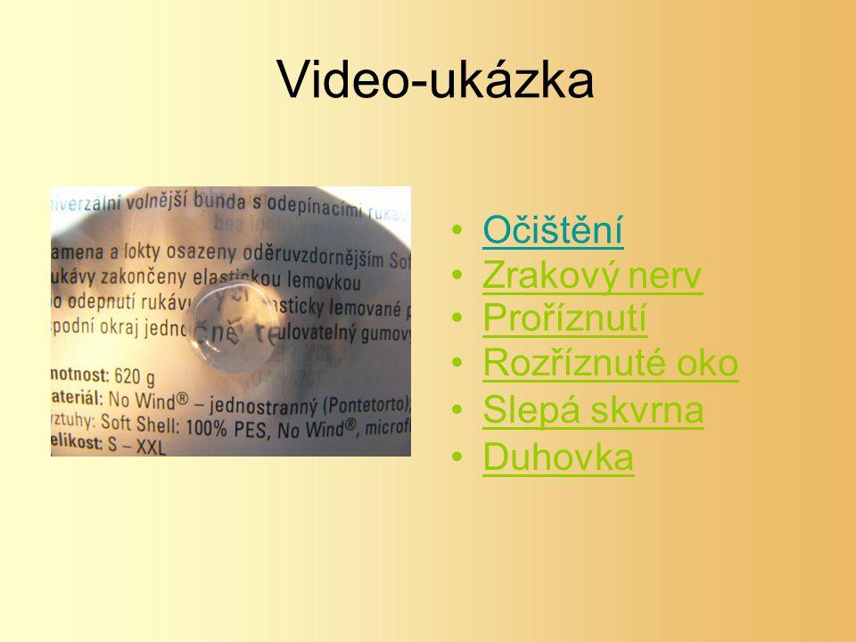 Video-ukázka Očištění Rozříznuté oko Zrakový nerv Slepá skvrna Proříznutí Duhovka