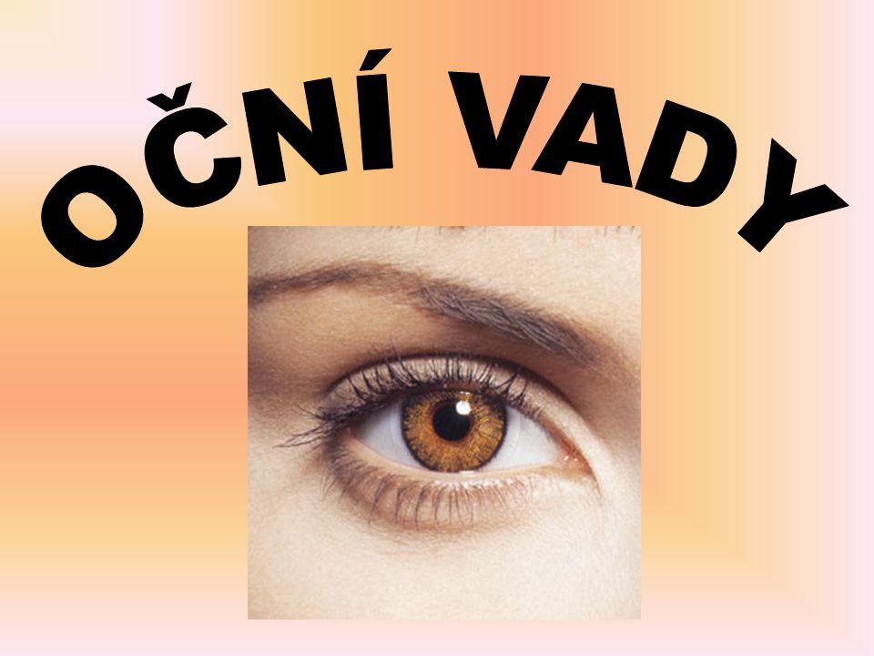 Š I L H Á N Í (strabismus) zraková vada, při které je porušena vzájemná spolupráce obou očí každé oko míří jiným směrem v naprosté většině případů se jedno oko dívá rovně, druhé oko je stočeno jiným směrem časté onemocnění, postihuje přibližně každé třicáté dítě může být trvalé nebo se objeví jen občas a zase zmizí