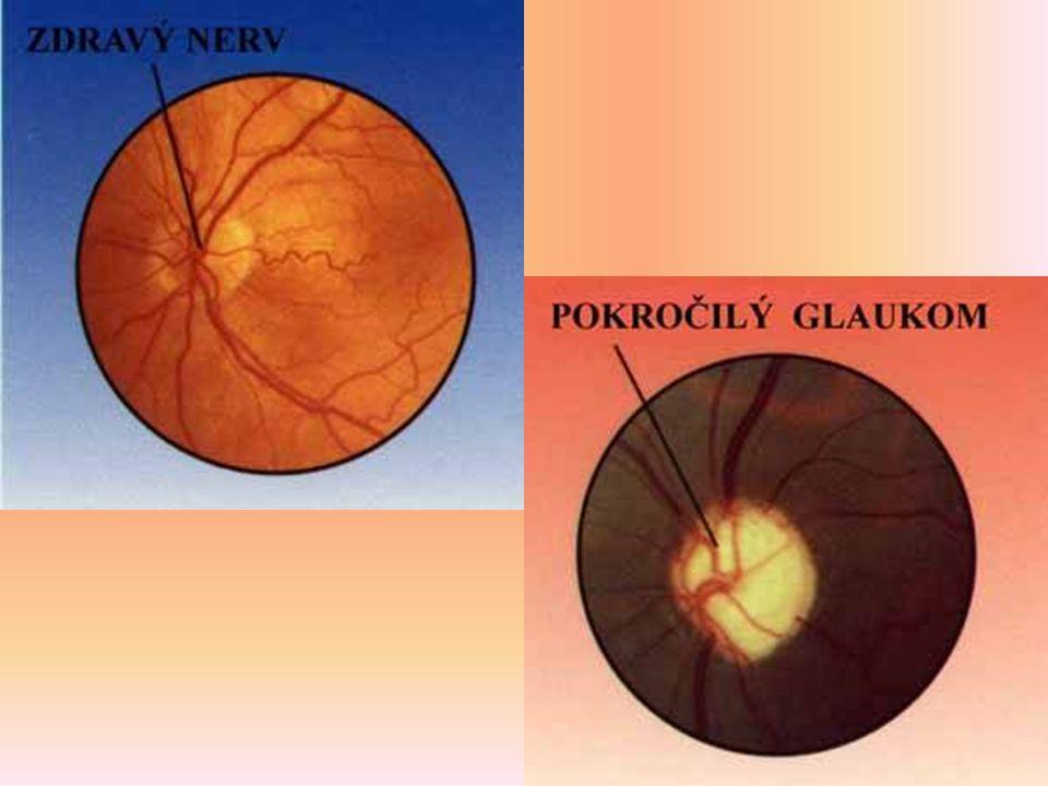 Š E D Ý Z Á K A L onemocnění oční čočky čočka zdravého oka je čirá, průhledná jako sklo, při šedém zákalu ztrácí svou průhlednost a stává se podobnou matnému sklu, proto čočka i vidění je neostré a zamlžené