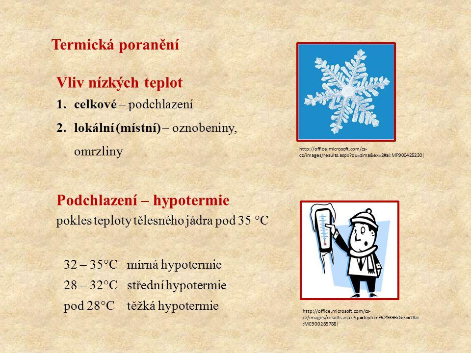 Termická poranění Vliv nízkých teplot 1.celkové – podchlazení 2.lokální (místní) – oznobeniny, omrzliny Podchlazení – hypotermie pokles teploty tělesného jádra pod 35 °C 32 – 35°Cmírná hypotermie 28 – 32°Cstřední hypotermie pod 28°Ctěžká hypotermie http://office.microsoft.com/cs- cz/images/results.aspx?qu=zima&ex=2#ai:MP900425230| http://office.microsoft.com/cs- cz/images/results.aspx?qu=teplom%C4%9Br&ex=1#ai :MC900285788|