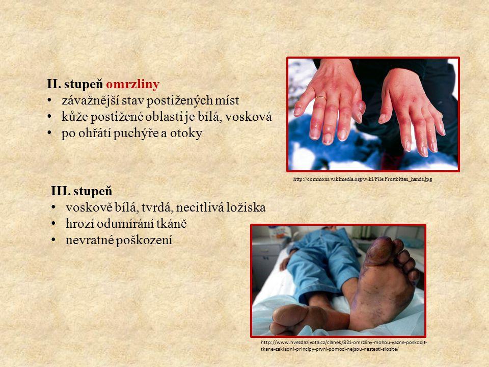 II. stupeň omrzliny závažnější stav postižených míst kůže postižené oblasti je bílá, vosková po ohřátí puchýře a otoky III. stupeň voskově bílá, tvrdá