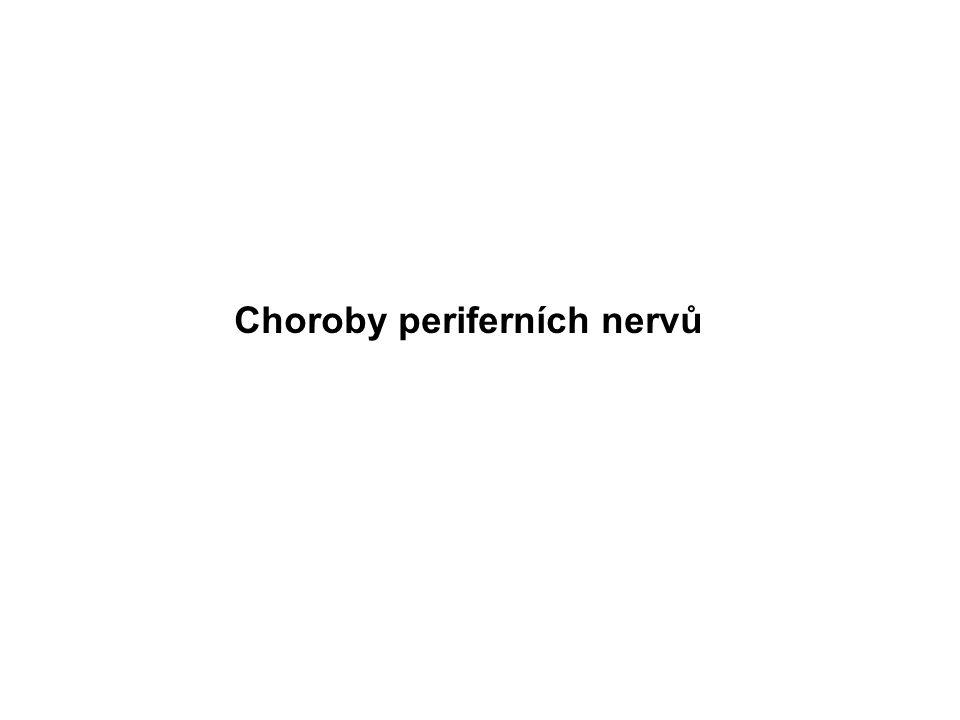 Choroby periferních nervů