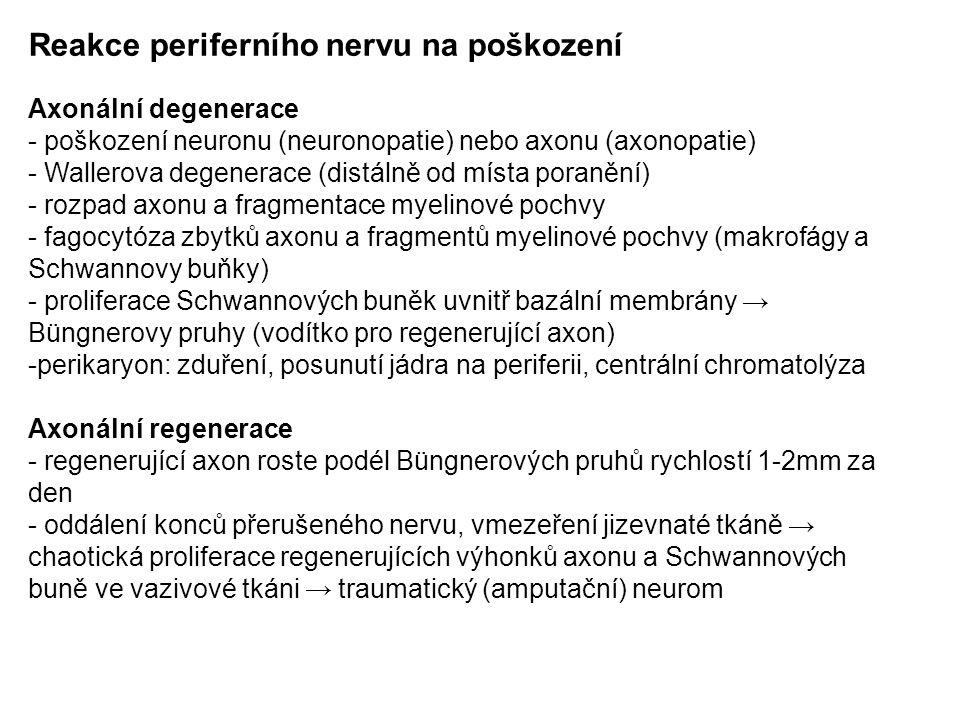 Reakce periferního nervu na poškození Axonální degenerace - poškození neuronu (neuronopatie) nebo axonu (axonopatie) - Wallerova degenerace (distálně