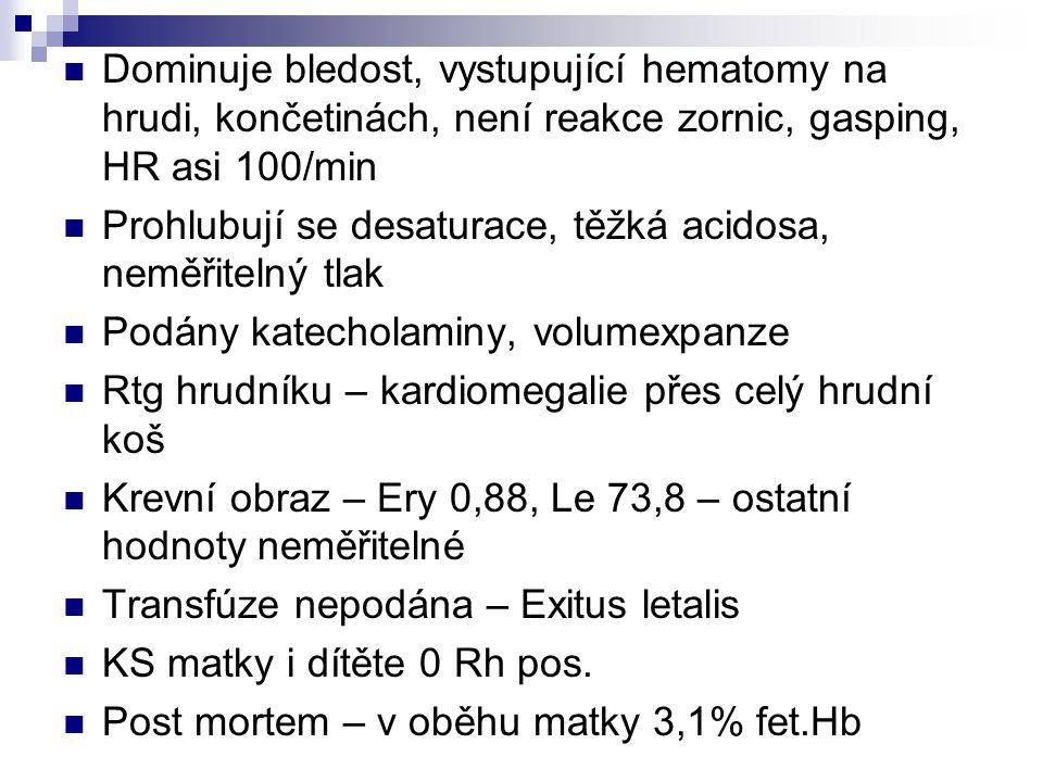Dominuje bledost, vystupující hematomy na hrudi, končetinách, není reakce zornic, gasping, HR asi 100/min Prohlubují se desaturace, těžká acidosa, neměřitelný tlak Podány katecholaminy, volumexpanze Rtg hrudníku – kardiomegalie přes celý hrudní koš Krevní obraz – Ery 0,88, Le 73,8 – ostatní hodnoty neměřitelné Transfúze nepodána – Exitus letalis KS matky i dítěte 0 Rh pos.