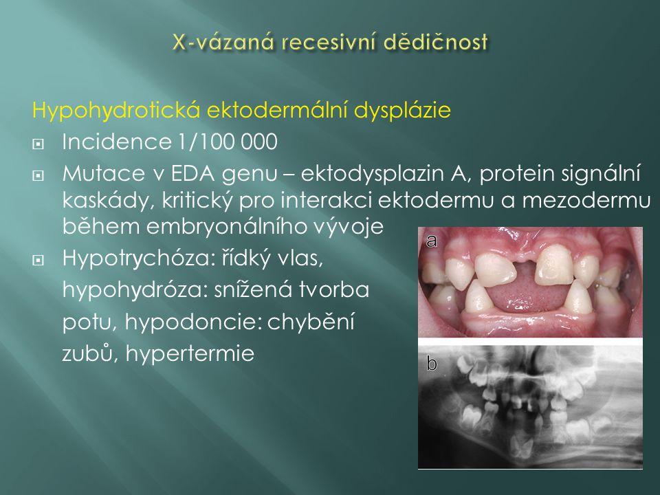 Hypoh y drotická ektodermální dysplázie  Incidence 1/100 000  Mutace v EDA genu – ektodysplazin A, protein signální kaskády, kritický pro interakci ektodermu a mezodermu během embryonálního vývoje  Hypotr y chóza: řídký vlas, hypoh y dróza: snížená tvorba potu, hypodoncie: chybění zubů, hypertermie