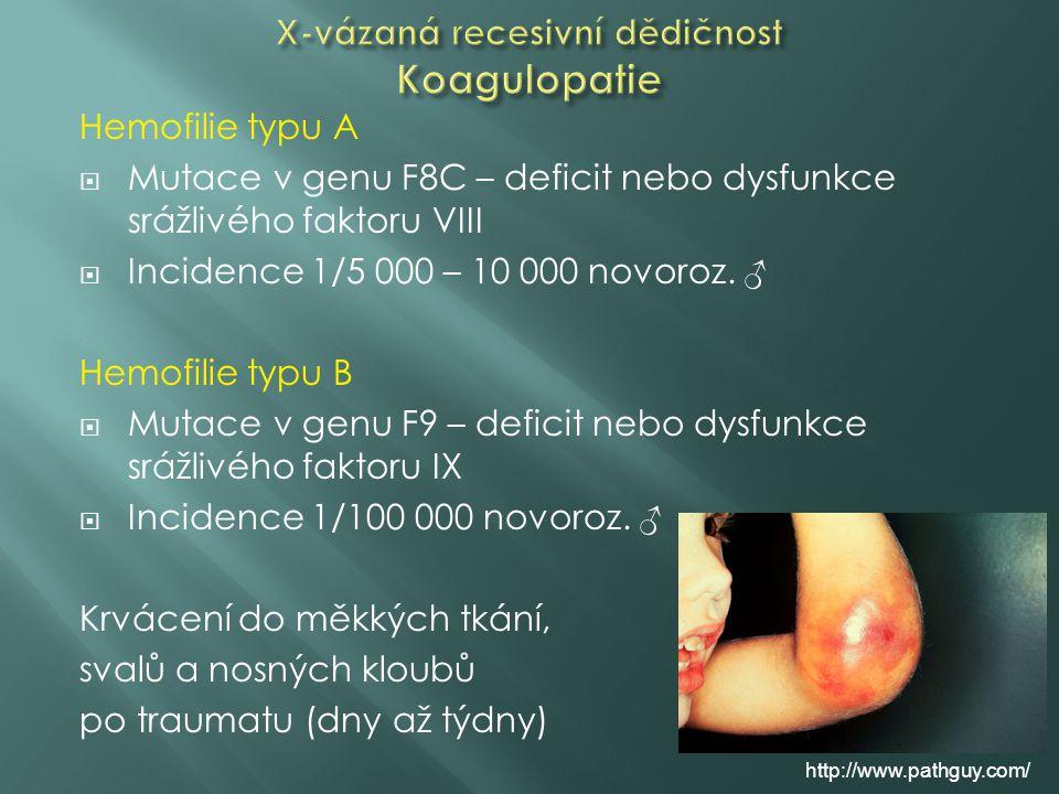 Hemofilie typu A  Mutace v genu F8C – deficit nebo dysfunkce srážlivého faktoru VIII  Incidence 1/5 000 – 10 000 novoroz. ♂ Hemofilie typu B  Mutac