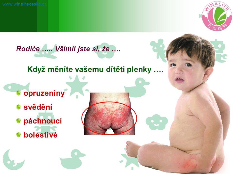 Rodiče ….. Všimli jste si, že …. Když měníte vašemu dítěti plenky …. opruzeniny svědění páchnoucí bolestivé www.winalitecesko.cz