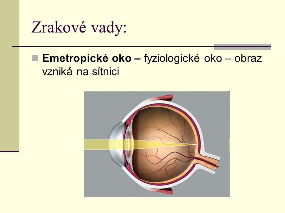 Zrakové vady: Emetropické oko – fyziologické oko – obraz vzniká na sítnici