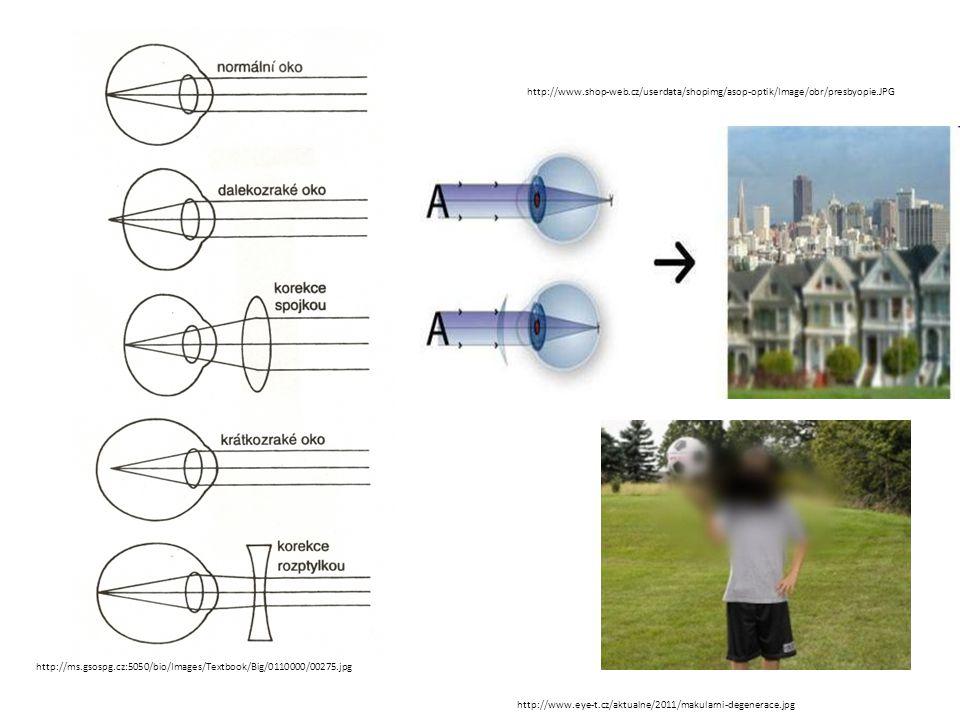 http://ms.gsospg.cz:5050/bio/Images/Textbook/Big/0110000/00275.jpg http://www.shop-web.cz/userdata/shopimg/asop-optik/Image/obr/presbyopie.JPG http://