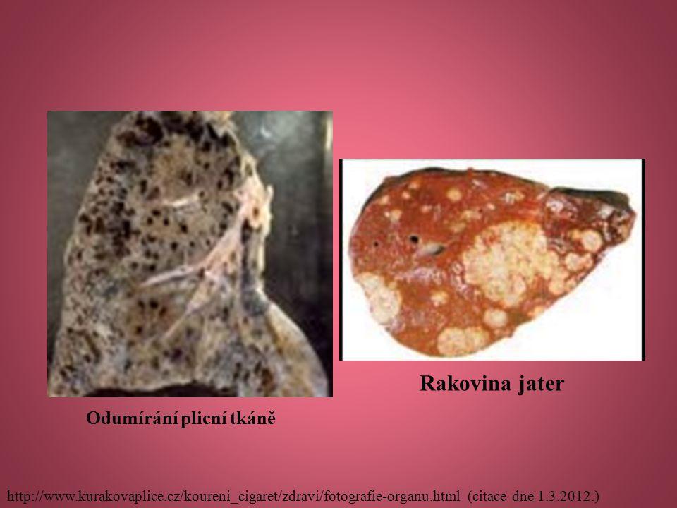 Odumírání plicní tkáně Rakovina jater http://www.kurakovaplice.cz/koureni_cigaret/zdravi/fotografie-organu.html (citace dne 1.3.2012.)