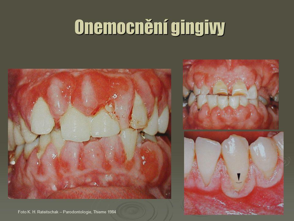Onemocnění gingivy Onemocnění gingivy Foto K. H. Rateitschak – Parodontologie, Thieme 1984