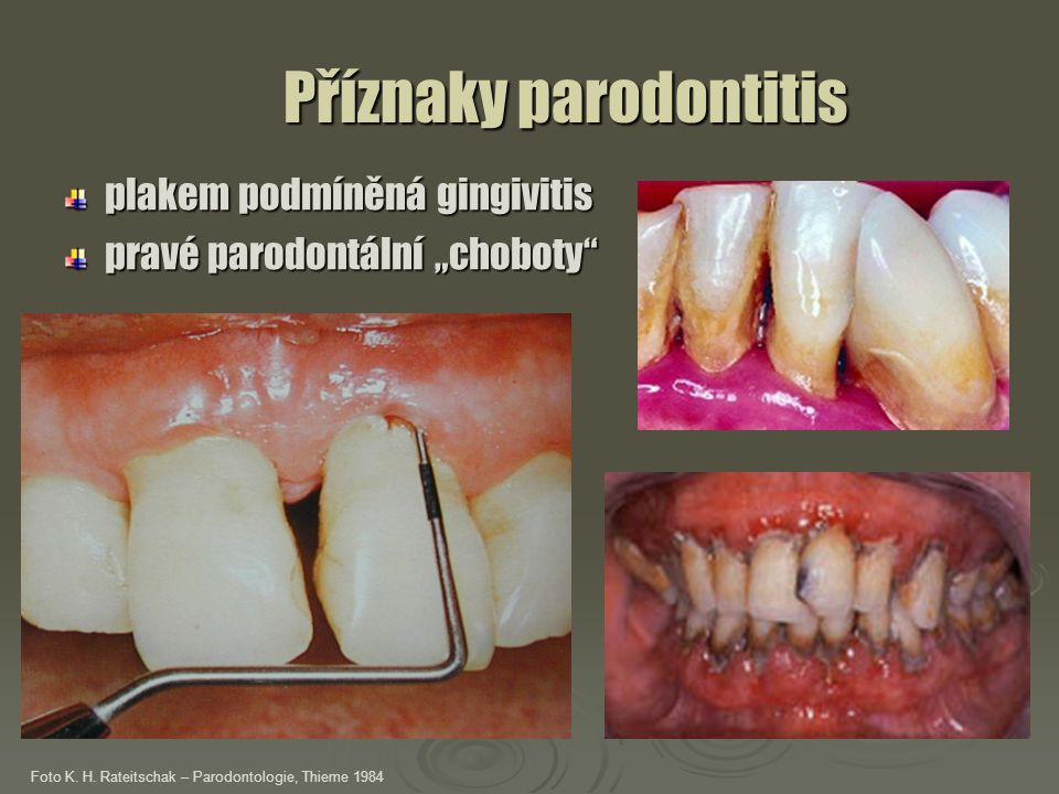 """Příznaky parodontitis Příznaky parodontitis plakem podmíněná gingivitis pravé parodontální """"choboty"""" Foto K. H. Rateitschak – Parodontologie, Thieme 1"""