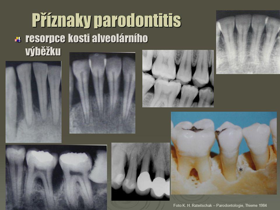 Příznaky parodontitis resorpce kosti alveolárního výběžku Foto K. H. Rateitschak – Parodontologie, Thieme 1984