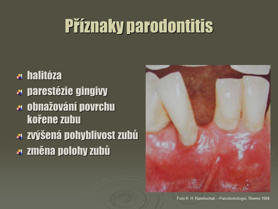 Příznaky parodontitis halitóza parestézie gingivy obnažování povrchu kořene zubu zvýšená pohyblivost zubů změna polohy zubů Foto K. H. Rateitschak – P