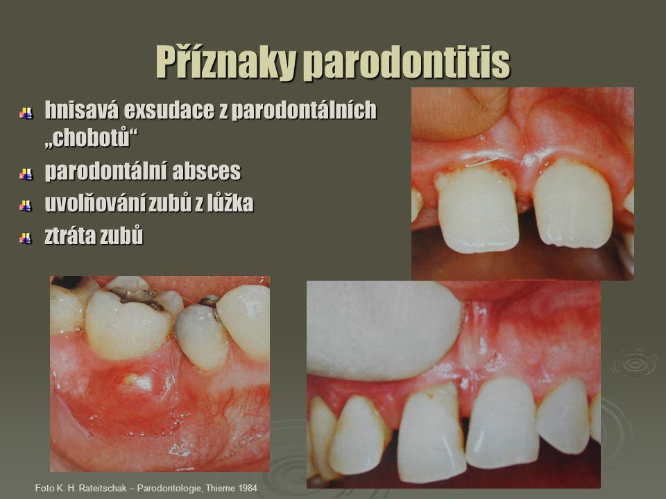 """Příznaky parodontitis hnisavá exsudace z parodontálních """"chobotů"""" parodontální absces uvolňování zubů z lůžka ztráta zubů Foto K. H. Rateitschak – Par"""