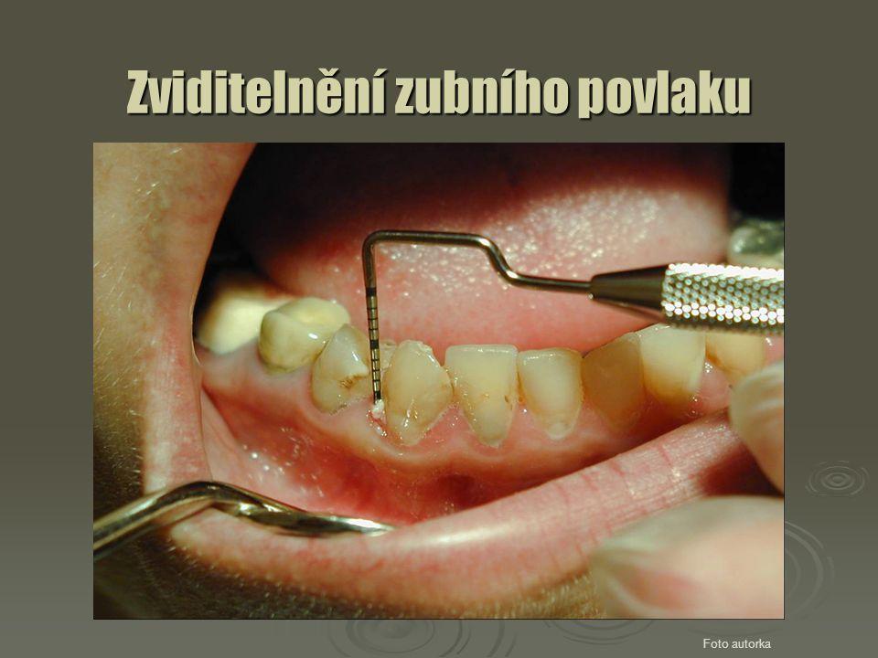 Zviditelnění zubního povlaku Foto autorka