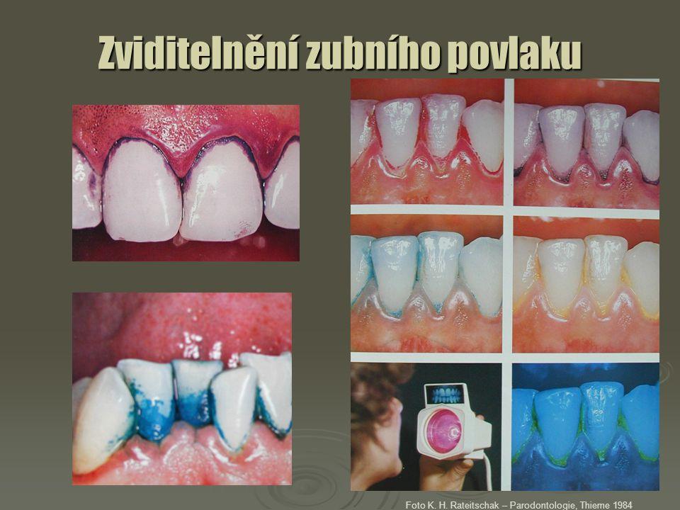 Zviditelnění zubního povlaku Foto K. H. Rateitschak – Parodontologie, Thieme 1984