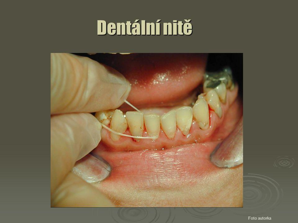 Dentální nitě Foto autorka