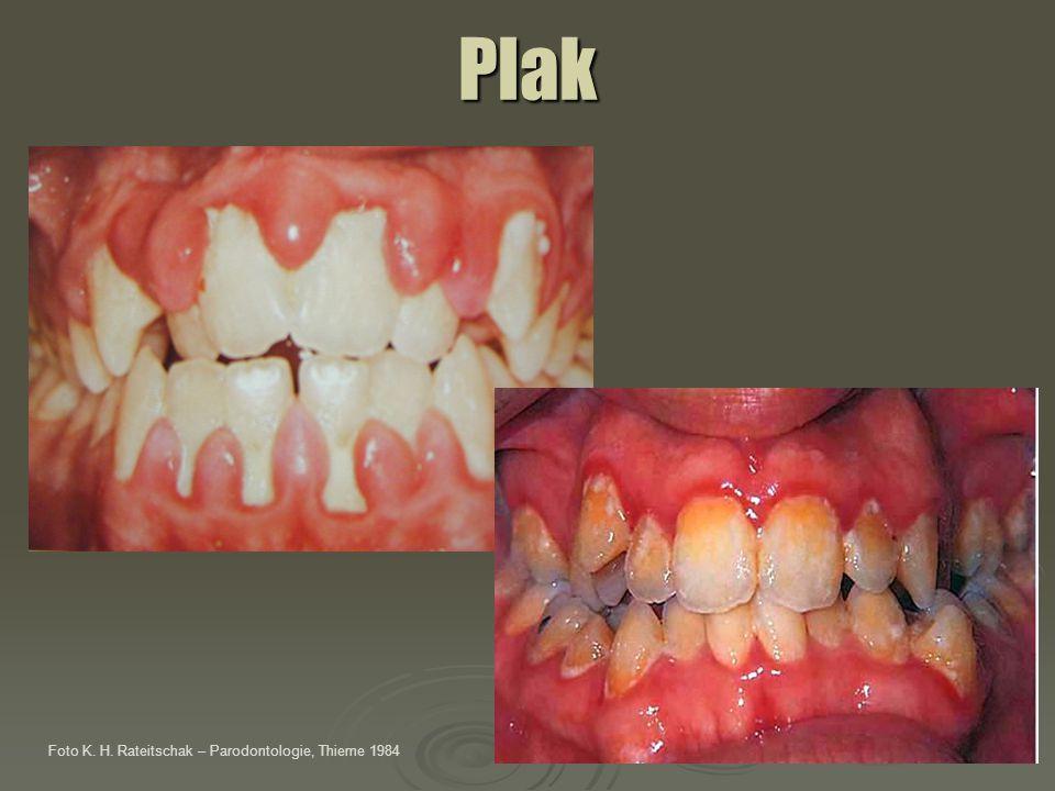 Příznaky parodontitis halitóza parestézie gingivy obnažování povrchu kořene zubu zvýšená pohyblivost zubů změna polohy zubů Foto K.