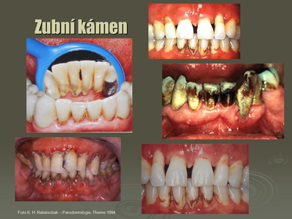 """Příznaky parodontitis hnisavá exsudace z parodontálních """"chobotů parodontální absces uvolňování zubů z lůžka ztráta zubů Foto K."""