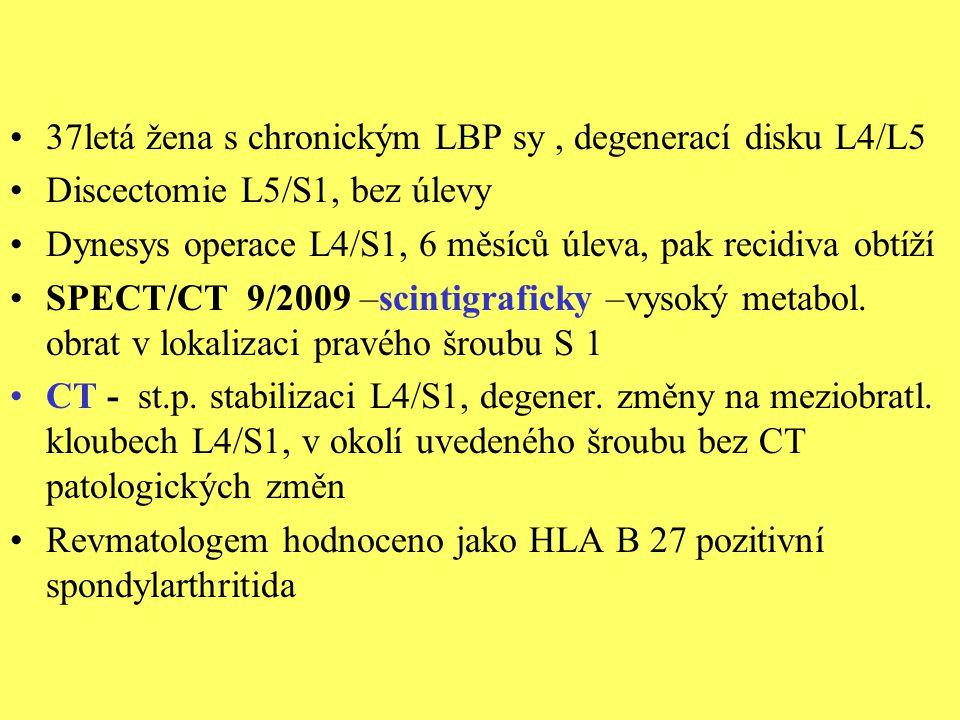 37letá žena s chronickým LBP sy, degenerací disku L4/L5 Discectomie L5/S1, bez úlevy Dynesys operace L4/S1, 6 měsíců úleva, pak recidiva obtíží SPECT/