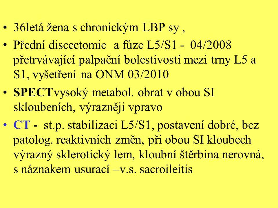 36letá žena s chronickým LBP sy, Přední discectomie a fúze L5/S1 - 04/2008 přetrvávající palpační bolestivostí mezi trny L5 a S1, vyšetření na ONM 03/
