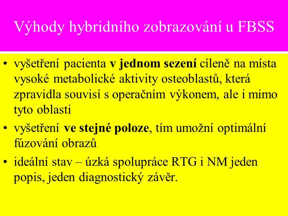 Výhody hybridního zobrazování u FBSS vyšetření pacienta v jednom sezení cíleně na místa vysoké metabolické aktivity osteoblastů, která zpravidla souvi