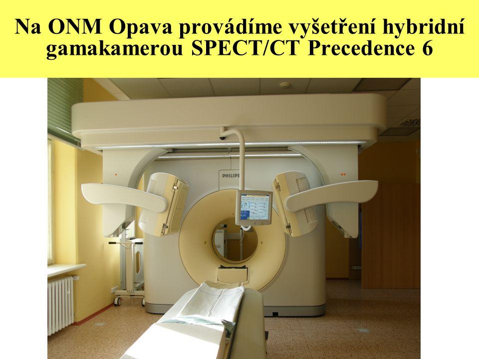 Na ONM Opava provádíme vyšetření hybridní gamakamerou SPECT/CT Precedence 6