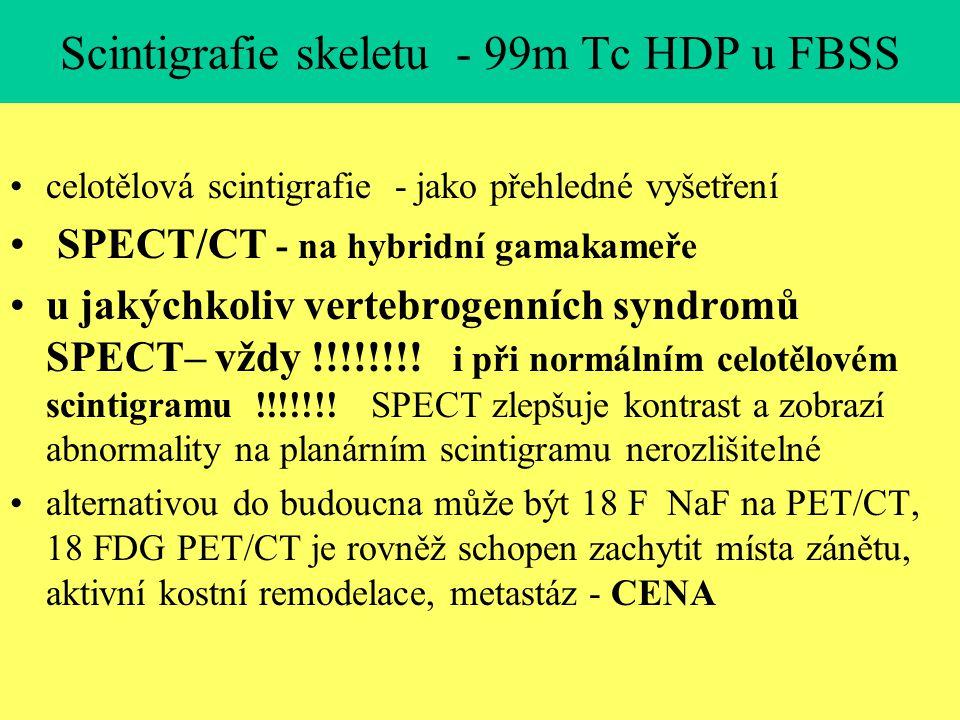 Scintigrafie skeletu - 99m Tc HDP u FBSS celotělová scintigrafie - jako přehledné vyšetření SPECT/CT - na hybridní gamakameře u jakýchkoliv vertebroge
