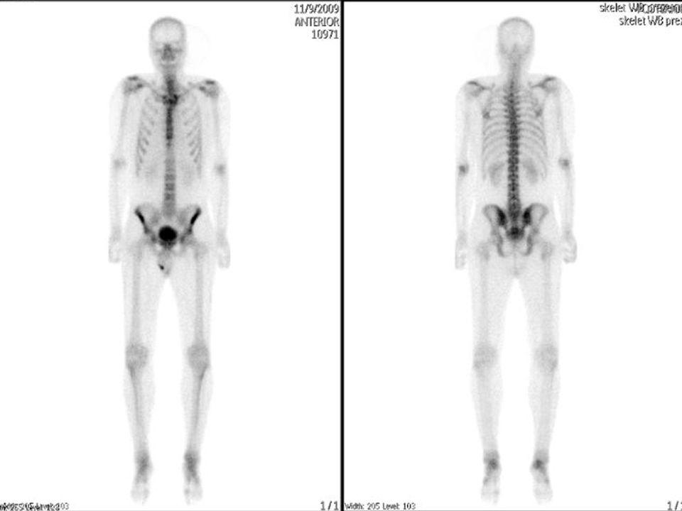 36letá žena s chronickým LBP sy, Přední discectomie a fúze L5/S1 - 04/2008 přetrvávající palpační bolestivostí mezi trny L5 a S1, vyšetření na ONM 03/2010 SPECTvysoký metabol.