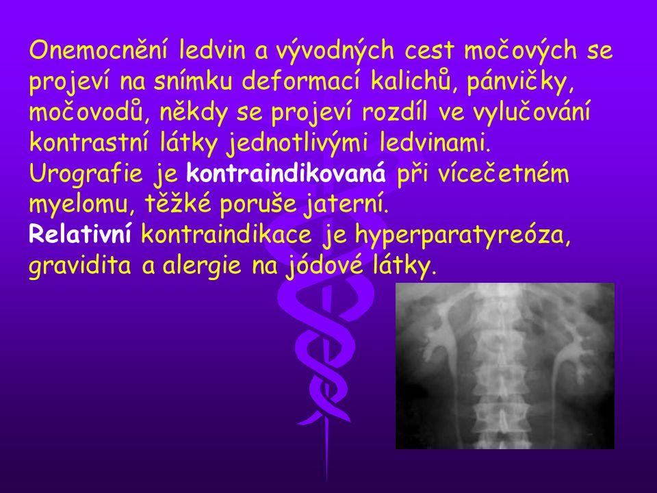 Onemocnění ledvin a vývodných cest močových se projeví na snímku deformací kalichů, pánvičky, močovodů, někdy se projeví rozdíl ve vylučování kontrast