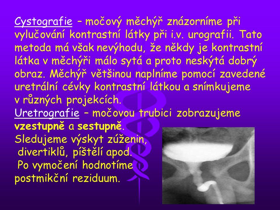 Cystografie – močový měchýř znázorníme při vylučování kontrastní látky při i.v. urografii. Tato metoda má však nevýhodu, že někdy je kontrastní látka