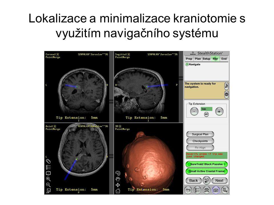 Lokalizace a minimalizace kraniotomie s využitím navigačního systému