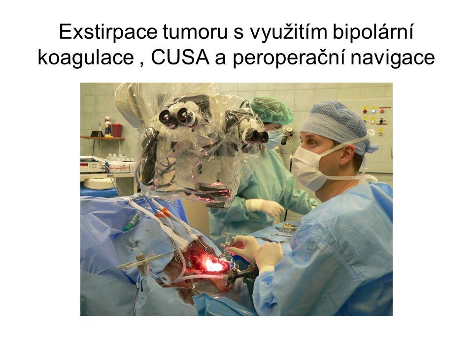Exstirpace tumoru s využitím bipolární koagulace, CUSA a peroperační navigace