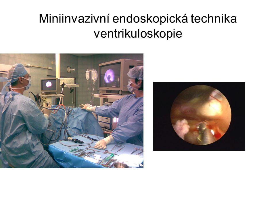 Miniinvazivní endoskopická technika ventrikuloskopie
