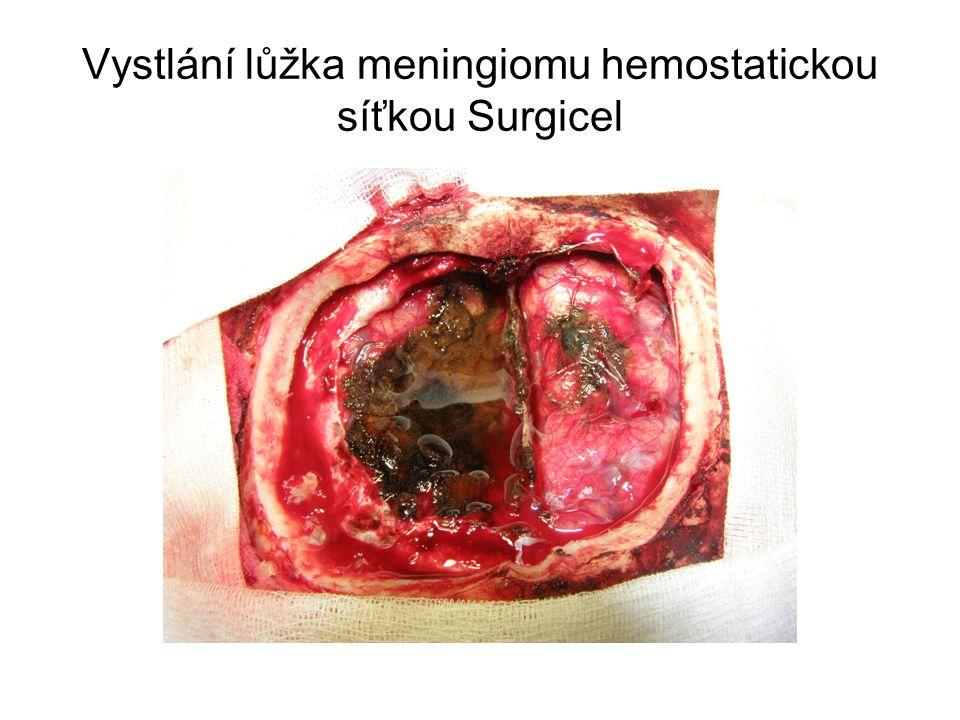 Vystlání lůžka meningiomu hemostatickou síťkou Surgicel