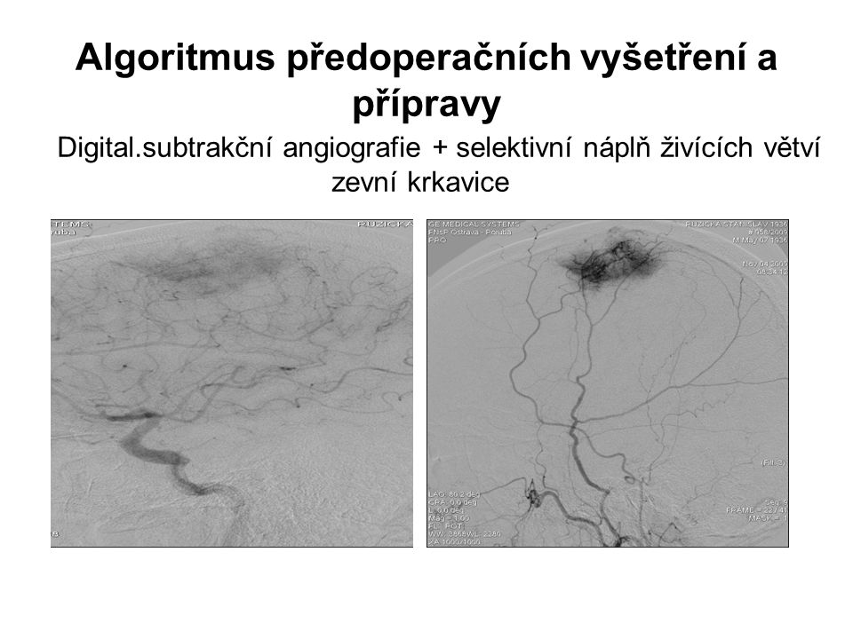 Algoritmus předoperačních vyšetření a přípravy Digital.subtrakční angiografie + selektivní náplň živících větví zevní krkavice