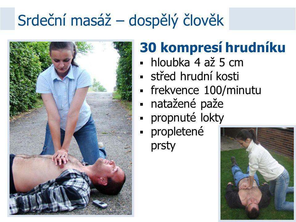 30 kompresí hrudníku  hloubka 4 až 5 cm  střed hrudní kosti  frekvence 100/minutu  natažené paže  propnuté lokty  propletené prsty Srdeční masáž