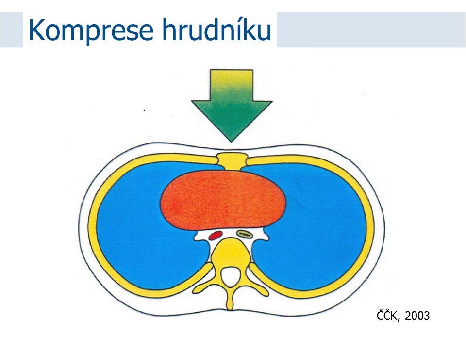 Komprese hrudníku ČČK, 2003