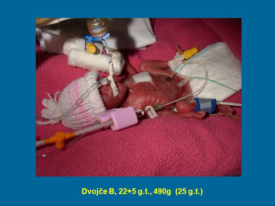 Ošetřovatelská péče na JIP Vysoce specializovaná a kvalifikovaná péče o nezralého a patologického novorozence