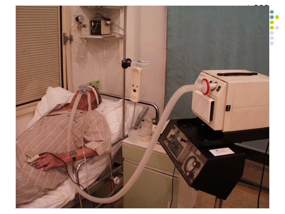 Historie léčby trvalým přetlakem- CPAP Prof. Colin Sullivan, nar.. 1945 Univerzita Sydney První CPAP Firma Respironics