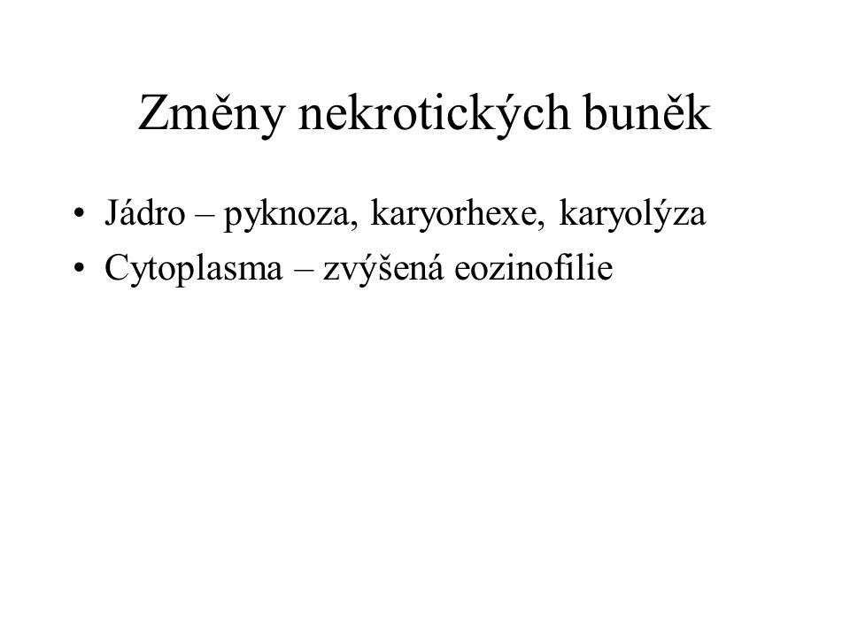 Změny nekrotických buněk Jádro – pyknoza, karyorhexe, karyolýza Cytoplasma – zvýšená eozinofilie