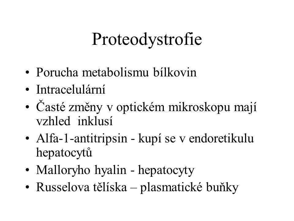 Proteodystrofie Porucha metabolismu bílkovin Intracelulární Časté změny v optickém mikroskopu mají vzhled inklusí Alfa-1-antitripsin - kupí se v endoretikulu hepatocytů Malloryho hyalin - hepatocyty Russelova tělíska – plasmatické buňky