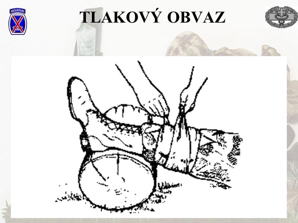 27 TLAKOVÝ OBVAZ
