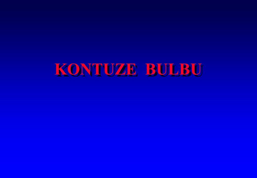 KONTUZE BULBU