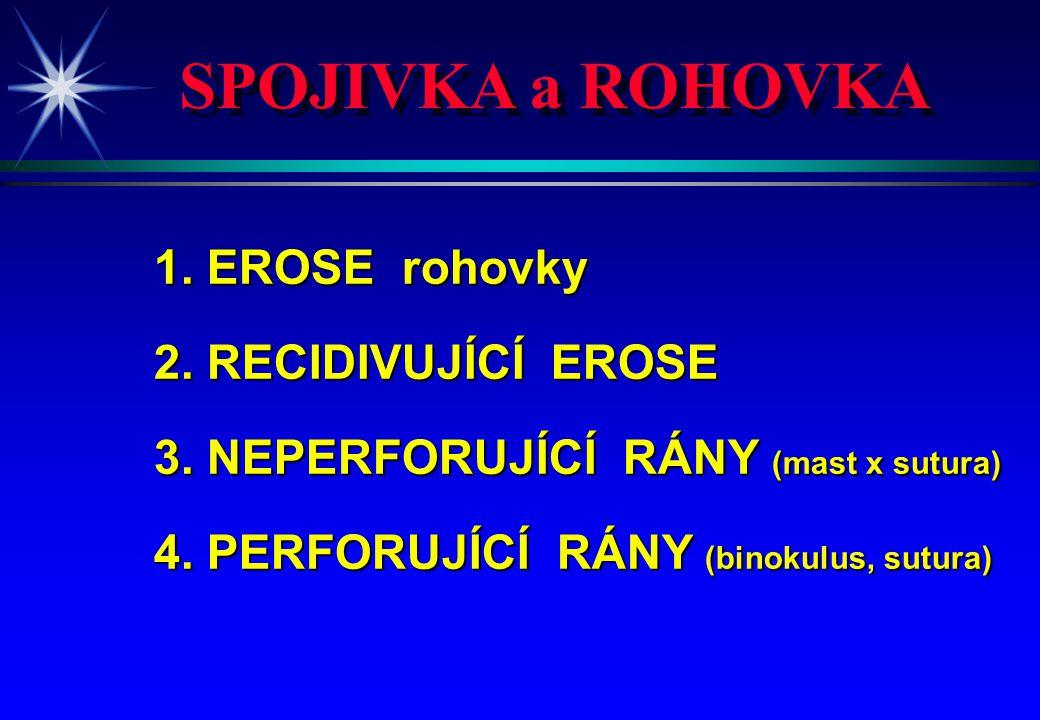 SPOJIVKA a ROHOVKA 1. EROSE rohovky 2. RECIDIVUJÍCÍ EROSE 3. NEPERFORUJÍCÍ RÁNY (mast x sutura) 4. PERFORUJÍCÍ RÁNY (binokulus, sutura)