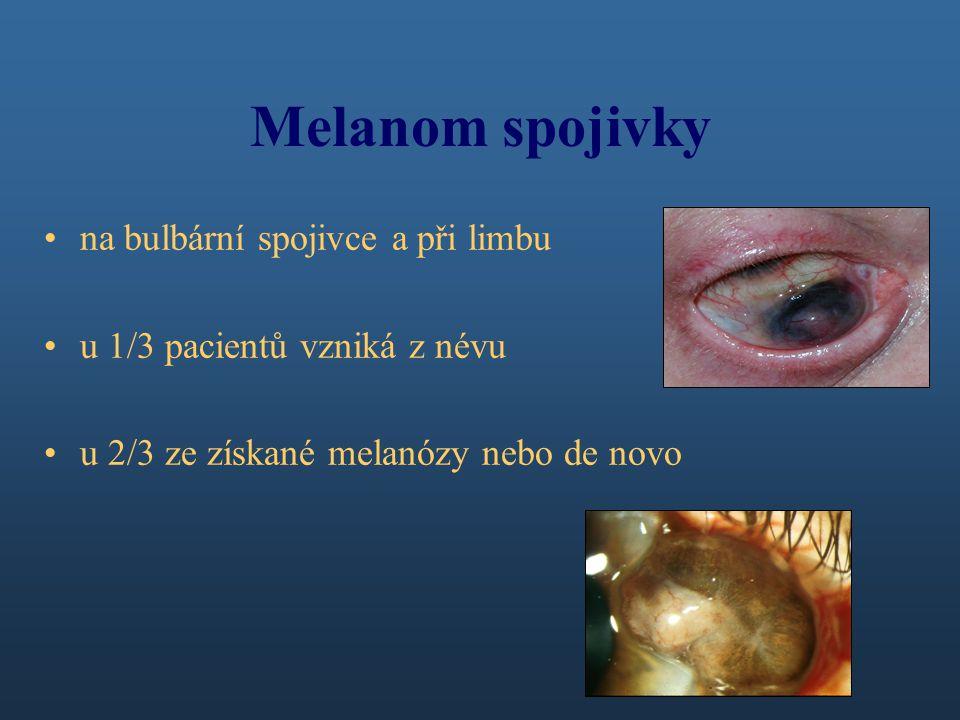 Melanom spojivky na bulbární spojivce a při limbu u 1/3 pacientů vzniká z névu u 2/3 ze získané melanózy nebo de novo