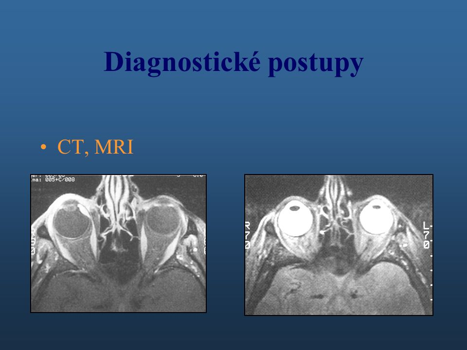Diagnostické postupy CT, MRI